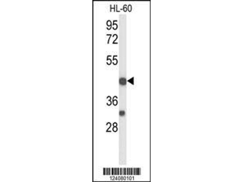 Western Blotting (WB) image for anti-Tumor Necrosis Factor Receptor Superfamily, Member 10d, Decoy with Truncated Death Domain (TNFRSF10D) (AA 252-278), (Center) antibody (ABIN653479)