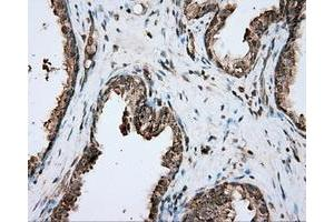 Image no. 1 for anti-Proto-Oncogene Pim-2 (Serine Threonine Kinase) (PIM2) antibody (ABIN2728990)