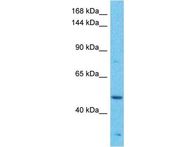 Western Blotting (WB) image for anti-Mitogen-Activated Protein Kinase Kinase Kinase 1 (MAP3K1) (C-Term) antibody (ABIN2783464)