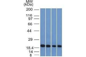 Image no. 1 for anti-Ferritin, Light Polypeptide (FTL) (AA 38-165) antibody (ABIN6939458)