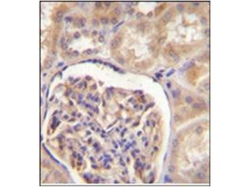 Immunohistochemistry (Paraffin-embedded Sections) (IHC (p)) image for anti-CYP27B1 antibody (Cytochrome P450, Family 27, Subfamily B, Polypeptide 1) (AA 479-508) (ABIN951779)