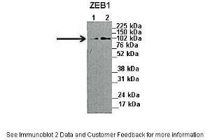 Image no. 2 for anti-Zinc Finger E-Box Binding Homeobox 1 (ZEB1) (N-Term) antibody (ABIN2777193)