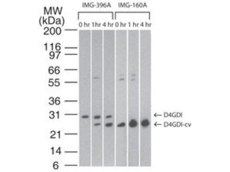 Western Blotting (WB) image for anti-rho GDP Dissociation Inhibitor (GDI) beta (ARHGDIB) antibody (ABIN252512)