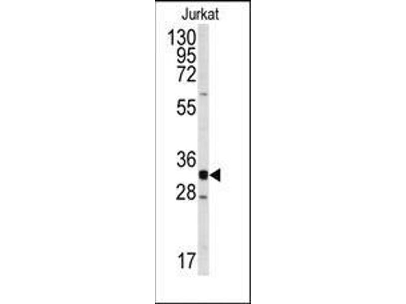 Western Blotting (WB) image for anti-Cyclin-Dependent Kinase 2 (CDK2) (C-Term) antibody (ABIN359658)