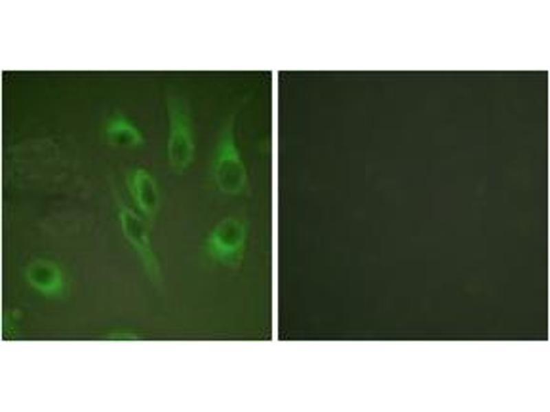 Immunofluorescence (IF) image for anti-Calnexin (CANX) (AA 543-592), (pSer583) antibody (ABIN1531305)