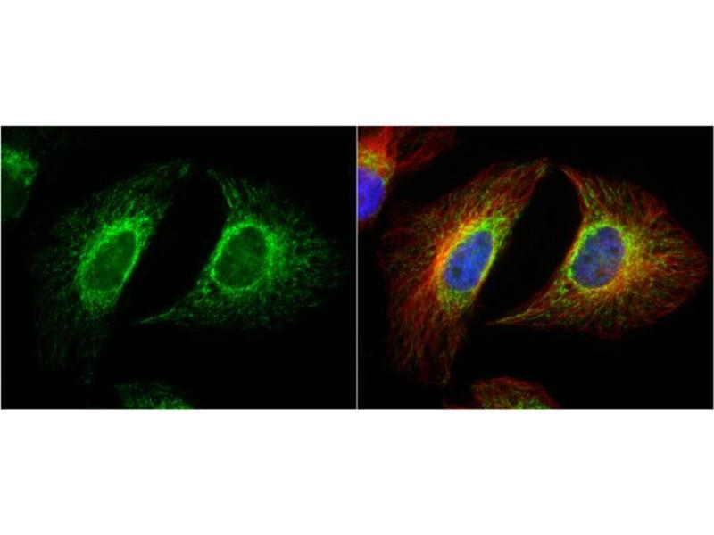 Immunofluorescence (IF) image for anti-Ribosomal Protein S6 Kinase, 70kDa, Polypeptide 1 (RPS6KB1) (Center) antibody (ABIN2855568)