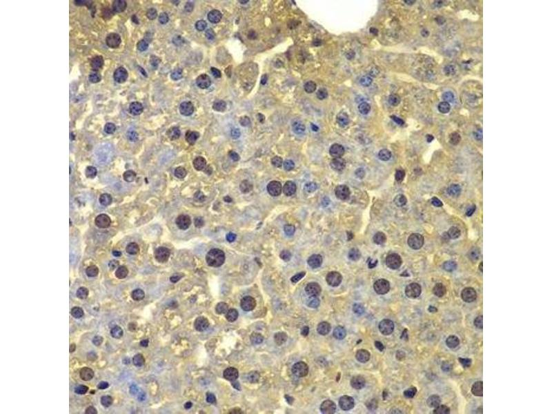Image no. 2 for anti-Sortilin 1 (SORT1) antibody (ABIN6223923)