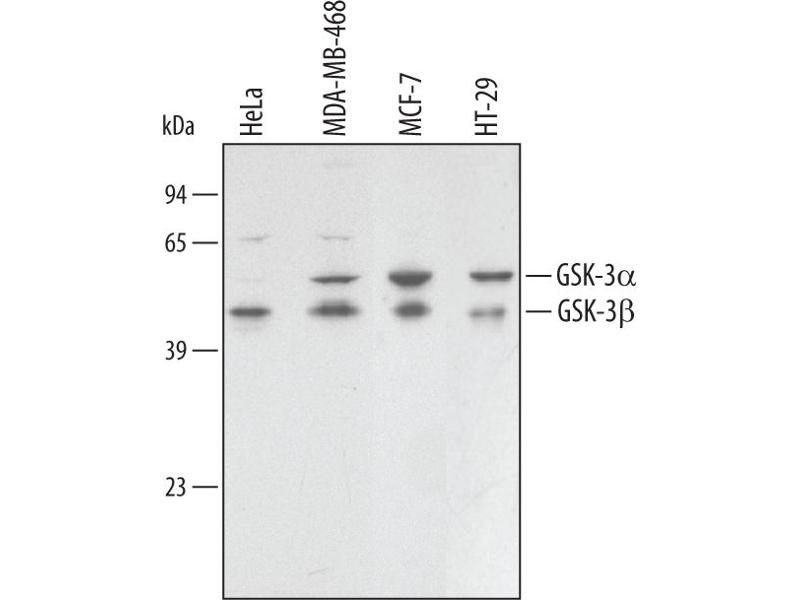 Western Blotting (WB) image for anti-Glycogen Synthase Kinase 3 alpha (GSK3a) antibody (ABIN4900770)