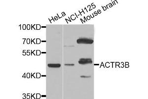 Image no. 1 for anti-ARP3 Actin-Related Protein 3 Homolog B (Yeast) (ACTR3B) antibody (ABIN2736225)