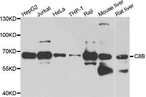 Western Blotting (WB) image for anti-Complement Component 8, beta Polypeptide (C8B) antibody (ABIN2736382)