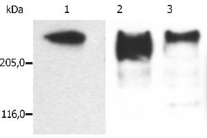 Image no. 1 for anti-Microtubule-Associated Protein 2 (MAP2) antibody (ABIN125739)