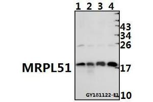 Image no. 1 for anti-Mitochondrial Ribosomal Protein L51 (MRPL51) (AA 59-103) antibody (ABIN6711069)