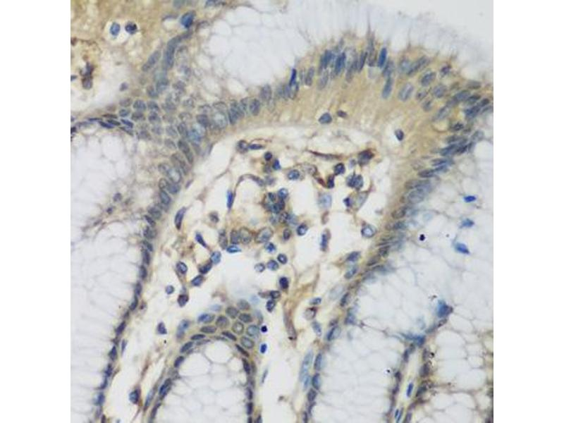 Immunohistochemistry (Paraffin-embedded Sections) (IHC (p)) image for anti-Complement Component 1, S Subcomponent (C1S) antibody (ABIN2970060)