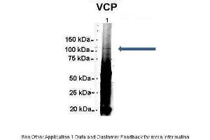 Image no. 1 for anti-Valosin Containing Protein (VCP) (C-Term) antibody (ABIN2788042)