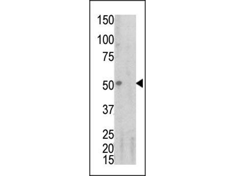 image for anti-Tumor Necrosis Factor Receptor Superfamily, Member 1A (TNFRSF1A) (pSer274) antibody (ABIN358242)