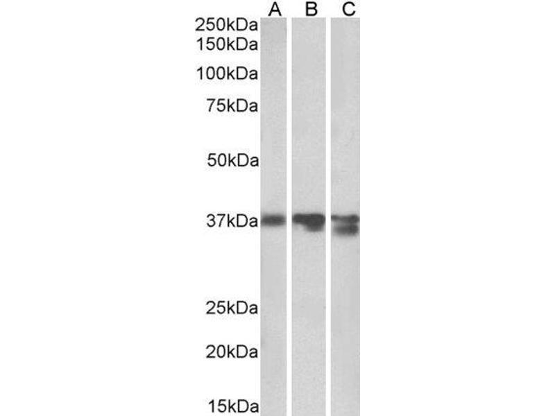 Western Blotting (WB) image for anti-Arginase, Liver (ARG1) (C-Term) antibody (ABIN2561197)