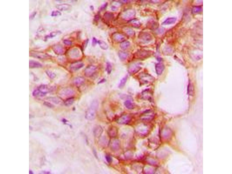 Immunohistochemistry (IHC) image for anti-CD40 antibody (CD40 Molecule, TNF Receptor Superfamily Member 5) (C-Term) (ABIN2704615)