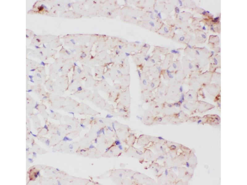 Immunohistochemistry (IHC) image for anti-Solute Carrier Family 2 (Facilitated Glucose Transporter), Member 4 (SLC2A4) (AA 333-509) antibody (ABIN3043929)