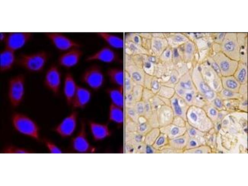 image for anti-Platelet-Derived Growth Factor Receptor, alpha Polypeptide (PDGFRA) (Tyr754) antibody (ABIN359914)