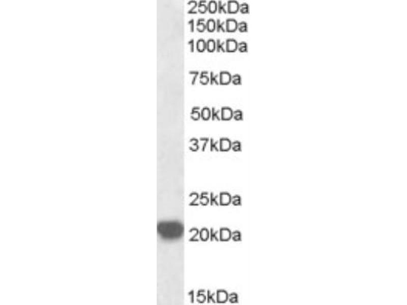 Western Blotting (WB) image for anti-RAC2 antibody (Ras-Related C3 Botulinum Toxin Substrate 2 (Rho Family, Small GTP Binding Protein Rac2)) (C-Term) (ABIN4349036)