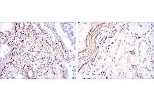 Immunohistochemistry (IHC) image for anti-Smooth Muscle Actin antibody (Actin, alpha 2, Smooth Muscle, Aorta) (ABIN968946)