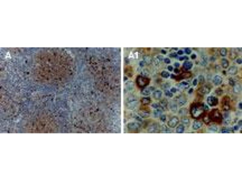 image for anti-TNF Receptor-Associated Factor 1 (TRAF1) (AA 1-22) antibody (ABIN957233)