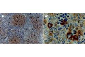 Image no. 1 for anti-TNF Receptor-Associated Factor 1 (TRAF1) (AA 1-22) antibody (ABIN957233)