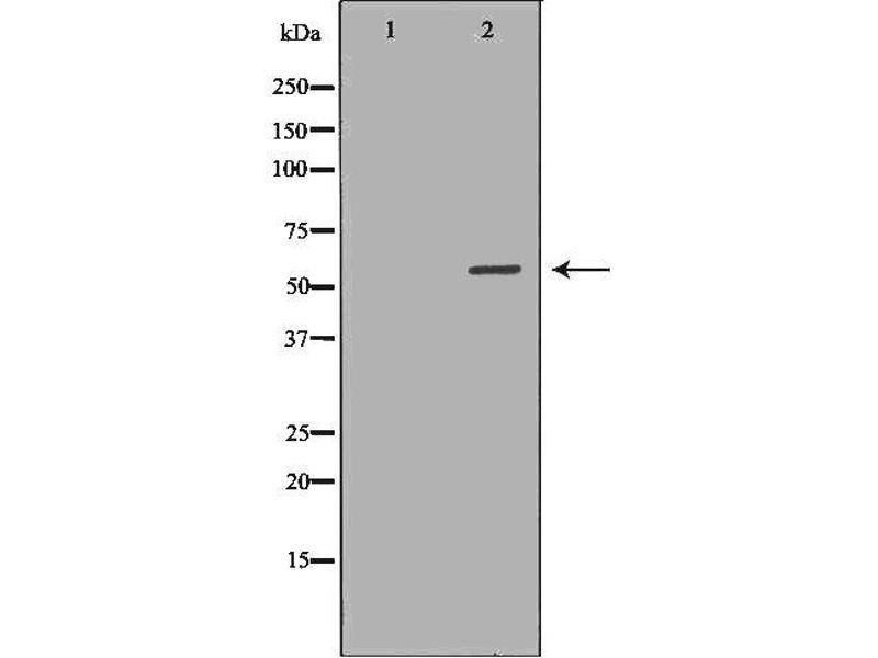 Western Blotting (WB) image for anti-Autoimmune Regulator (AIRE) antibody (ABIN6266320)