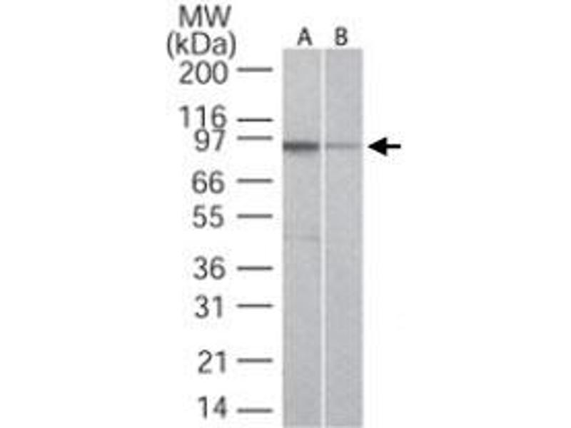 Western Blotting (WB) image for anti-Toll-Like Receptor 5 (TLR5) antibody (ABIN532010)