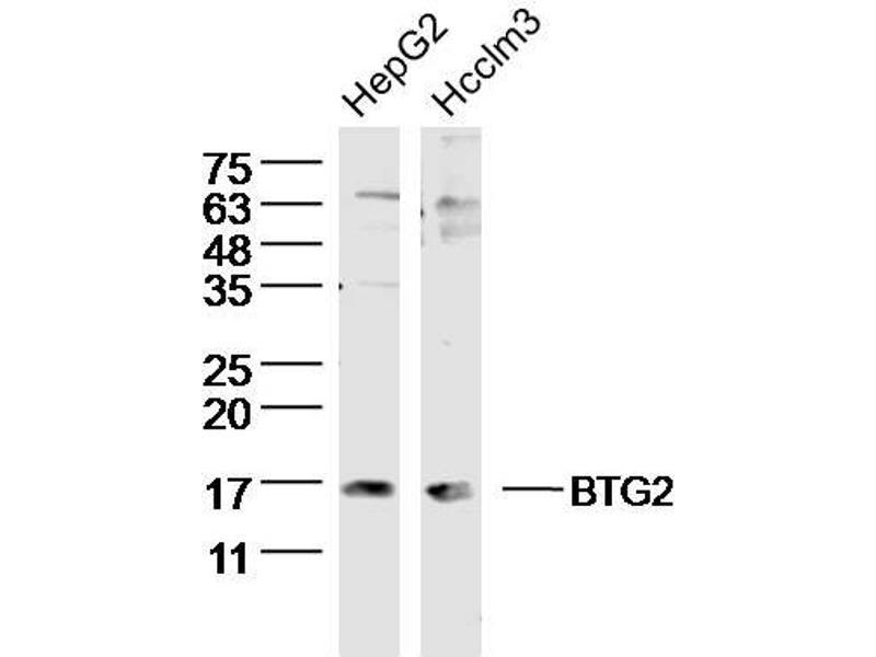 Western Blotting (WB) image for anti-BTG Family, Member 2 (BTG2) antibody (ABIN723905)