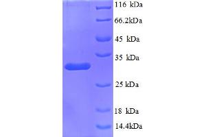 Image no. 1 for Kininogen 1 (KNG1) (AA 390-644) protein (His tag) (ABIN5712930)