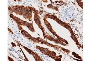 Image no. 2 for anti-Epithelial Cell Adhesion Molecule (EPCAM) (AA 1-265) antibody (ABIN1997259)