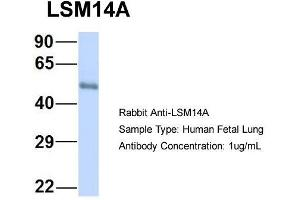 Western Blotting (WB) image for anti-LSM14A, SCD6 Homolog A (S. Cerevisiae) (LSM14A) (C-Term) antibody (ABIN2786131)