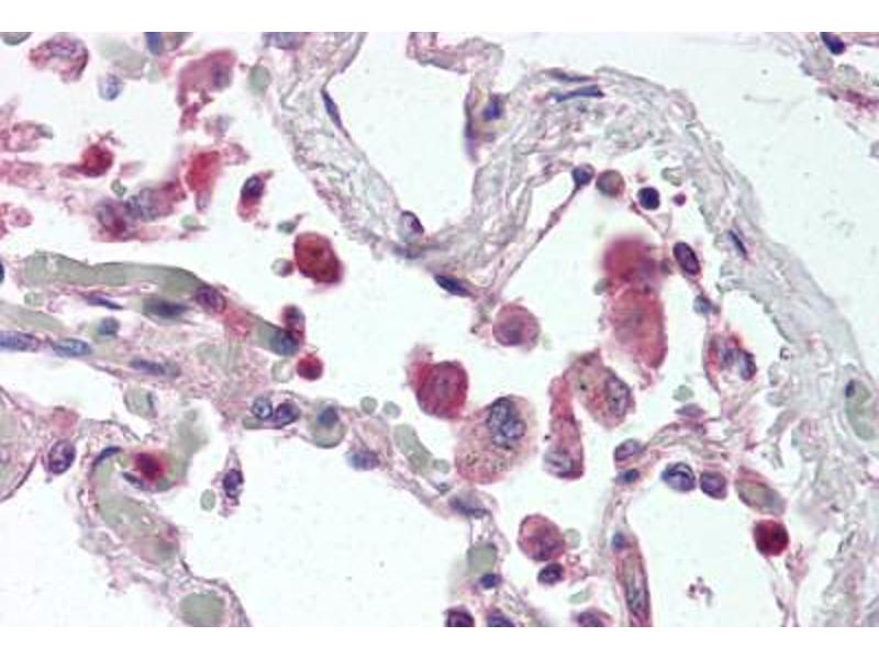 Immunohistochemistry (Paraffin-embedded Sections) (IHC (p)) image for anti-Toll-Like Receptor 9 (TLR9) (AA 268-284) antibody (ABIN337069)