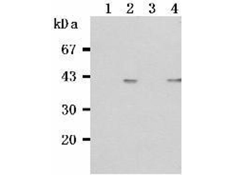 Western Blotting (WB) image for anti-TNFRSF13C antibody (Tumor Necrosis Factor Receptor Superfamily, Member 13C) (ABIN1449226)