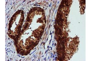 Image no. 3 for anti-Chromosome 1 Open Reading Frame 50 (C1ORF50) antibody (ABIN1497033)
