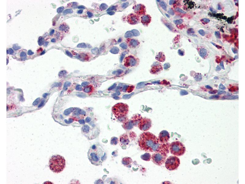 Immunohistochemistry (IHC) image for anti-Interferon Regulatory Factor 7 (IRF7) (AA 1-150) antibody (ABIN6391259)