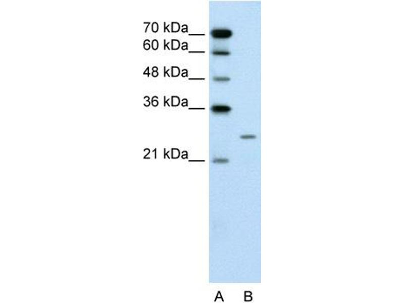 Western Blotting (WB) image for anti-BPI Fold Containing Family A, Member 1 (BPIFA1) (Middle Region) antibody (ABIN310347)