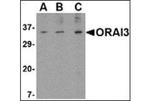Western Blotting (WB) image for anti-ORAI3 antibody (ORAI Calcium Release-Activated Calcium Modulator 3) (N-Term) (ABIN500425)
