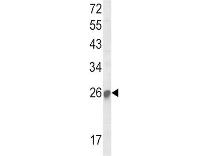 Western Blotting (WB) image for anti-Suppressor of Cytokine Signaling 1 (SOCS1) antibody (ABIN3003913)