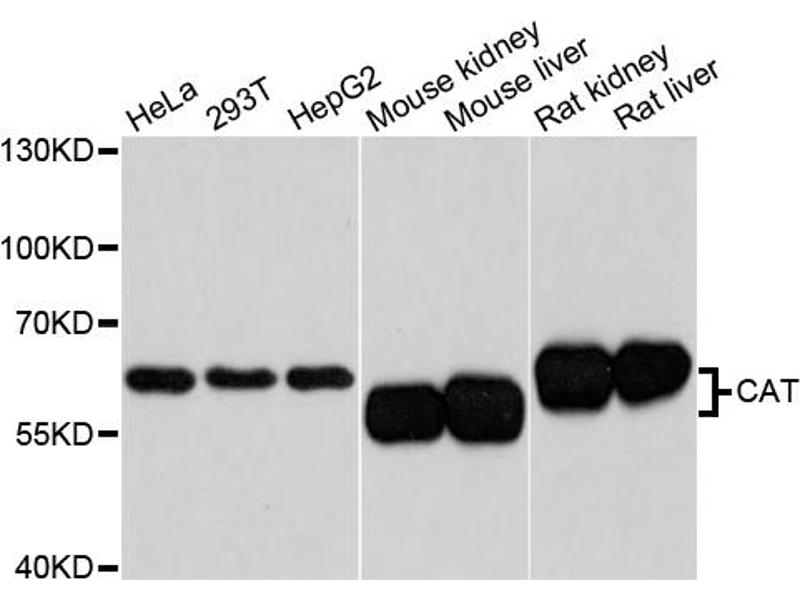 Image no. 1 for anti-Cat antibody (ABIN6567261)