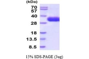 Image no. 1 for Cytokine Receptor-Like Factor 2 (CRLF2) (AA 23-231) protein (His tag) (ABIN5854751)