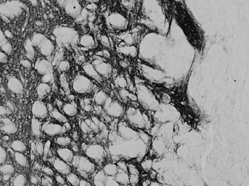 Immunohistochemistry (IHC) image for anti-Proenkephalin (PENK) antibody (ABIN451697)