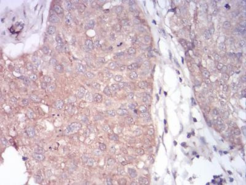 Immunohistochemistry (IHC) image for anti-phospholipase C, gamma 1 (PLCG1) (AA 1192-1291) antibody (ABIN5542680)