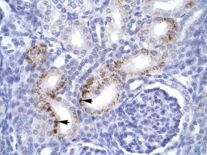 Immunohistochemistry (IHC) image for anti-FADD antibody (Fas (TNFRSF6)-Associated Via Death Domain) (C-Term) (ABIN2792110)