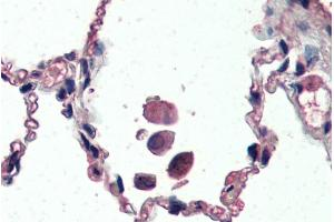 Image no. 7 for anti-Uncoupling Protein 2 (Mitochondrial, Proton Carrier) (UCP2) (Internal Region) antibody (ABIN5539644)