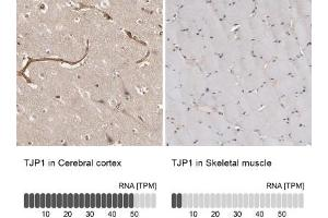 Immunohistochemistry (Paraffin-embedded Sections) (IHC (p)) image for anti-Tight Junction Protein 1 (Zona Occludens 1) (TJP1) antibody (ABIN4359733)