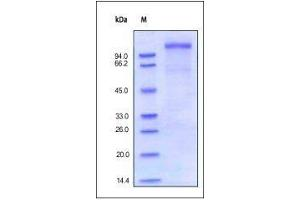 Image no. 1 for Very Low Density Lipoprotein Receptor (VLDLR) (AA 28-769) (Active) protein (His tag) (ABIN2181921)