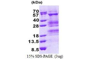 Image no. 1 for Transcriptional Adaptor 3 (TADA3) (AA 1-432) protein (His tag) (ABIN5853220)