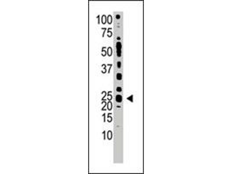 Western Blotting (WB) image for anti-Teratocarcinoma-Derived Growth Factor 1 (TDGF1) antibody (ABIN544829)